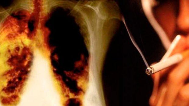 Emfyzém je jednou z nejčastějších onemocnění