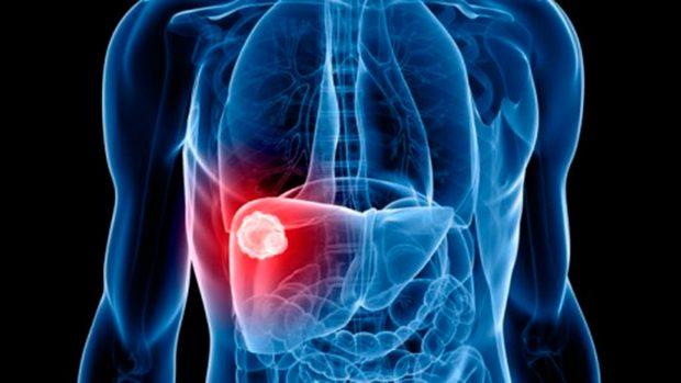 Rakovina jater